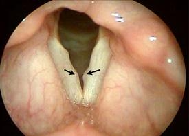 Nódulos vocais Exemplo