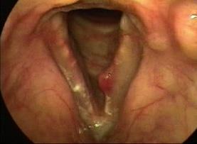 Pólipos de pregas vocais - Exemplo